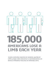 185,000 Americans Lose a Limb EAch Year